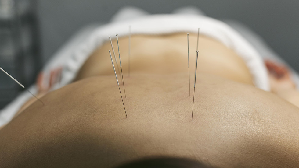 acupuntura dolor muscular