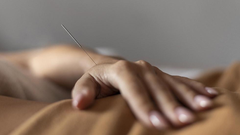 Aguja acupuntura mano