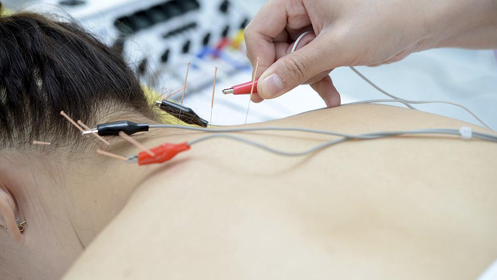 electroacupuntura medicina tradicional