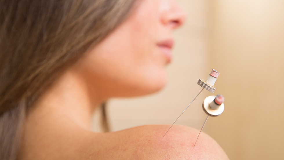 moxa aguja acupuntura