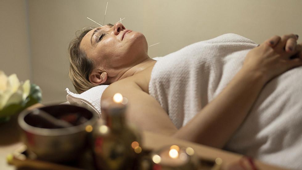 acupuntura estres ansiedad insomnio
